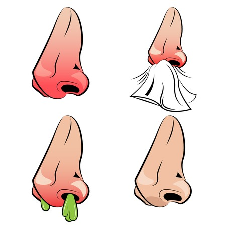 Runny nose set with stages of illness from healthy condition till disease isolated vector illustration