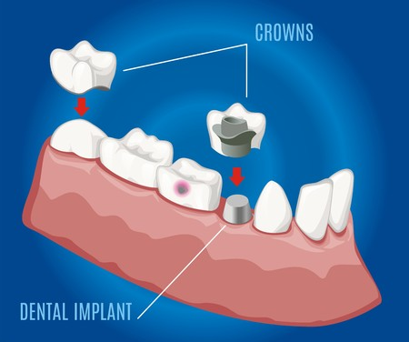 Isometric professional prosthetic stomatology template with dental implant and crowns on blue background isolated vector illustration Illustration