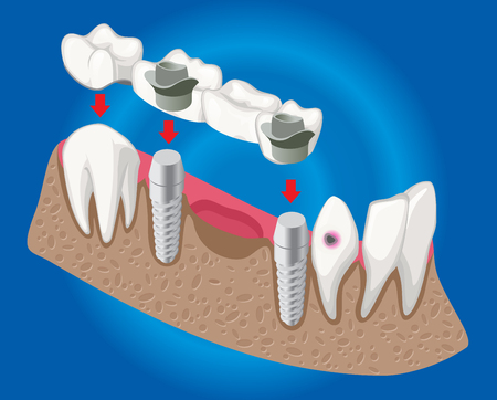 Isometric prosthetic dentistry concept with dental bridge used for missing teeth covering isolated vector illustration