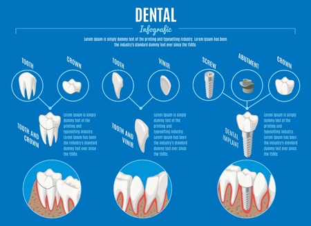 Isometric prosthetic dentistry infographic concept with crown veneer and structure of dental implant vector illustration