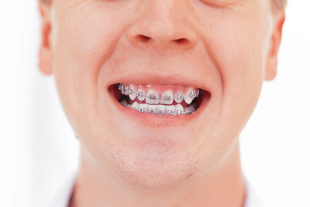 crooked teeth: Teeth with braces