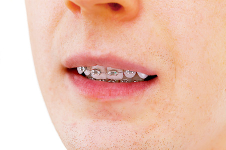 dentalcare: Teeth with braces