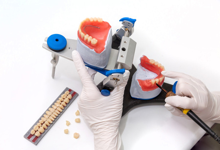 dental crowns in the manufacturing process in the hands Stok Fotoğraf