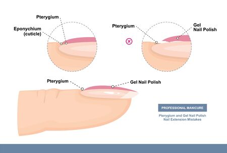 Pterygium and Gel Nail Polish. Nail Extension Mistakes. Professional Manicure Tutorial. Vector illustration