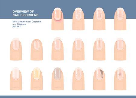 Trastornos y enfermedades de las uñas más comunes. Gran conjunto. Ilustración vectorial
