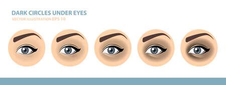 Dark Circles Under Eyes. Female Eye. Vector Illustration