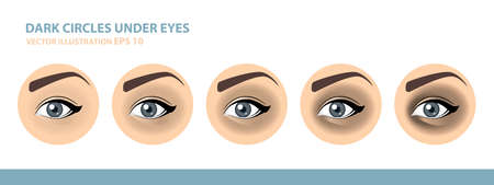 Dark Circles Under Eyes. Female Eye. Vector Illustration