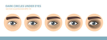 Dark Circles Under Eyes. Male Eye. Vector Illustration