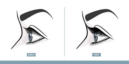 Female Eye Before and After Eyelash Extension. Comparison of Natural and Volume Eyelashes. Side View. Infographic Vector Illustration  イラスト・ベクター素材