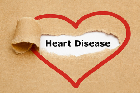 arrhythmias: The text Heart Disease appearing behind torn brown paper.