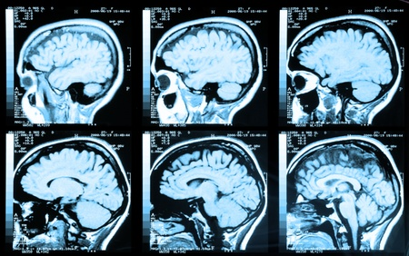 mri scan: Health medical image of an MRI  MRA (Magnetic Resonance Angiogram)  of the head showing the brain Stock Photo