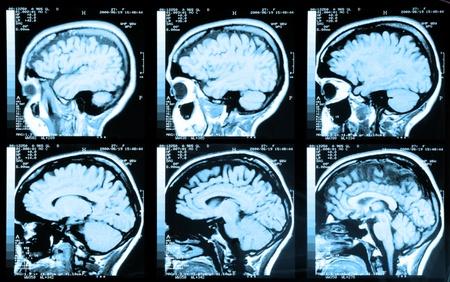 Salud de imágenes médicas de una resonancia magnética / ARM (angiografía por resonancia magnética) de la cabeza que muestra el cerebro Foto de archivo