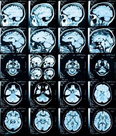 resonancia magnetica: Salud de imágenes médicas de una resonancia magnética  ARM (angiografía por resonancia magnética) de la cabeza que muestra el cerebro