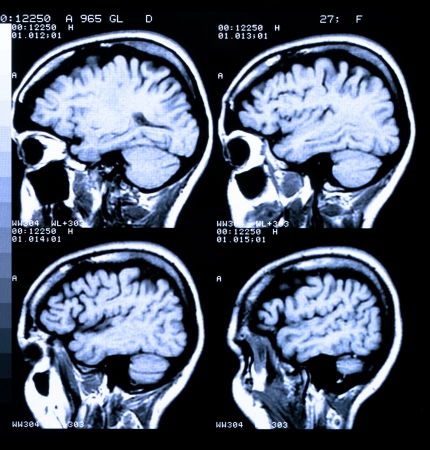 Health medical image of an MRI  MRA (Magnetic Resonance Angiogram)  of the head showing the brain Stock Photo