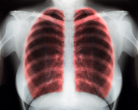bronchus: X-Ray Image Of Human Chest for a medical diagnosis Stock Photo