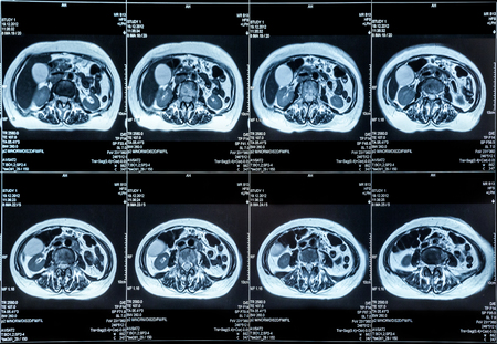Imagen de resonancia magnética de los órganos del abdomen humano Foto de archivo