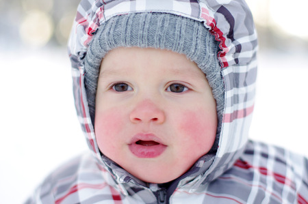 portrait of 1 year baby with rosy cheeks in winter outdoors Stock Photo