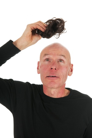 bald man: New hair for bald hair on white background