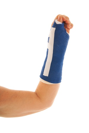 broken wrist: Roto la mu�eca en azul yeso aislado sobre fondo blanco Foto de archivo