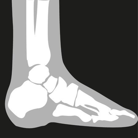 wrist joint: X-ray. Feet. Symbol. Vector illustration.