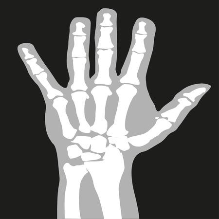 tomography: X-ray. Hand. Symbol. Vector illustration. Illustration
