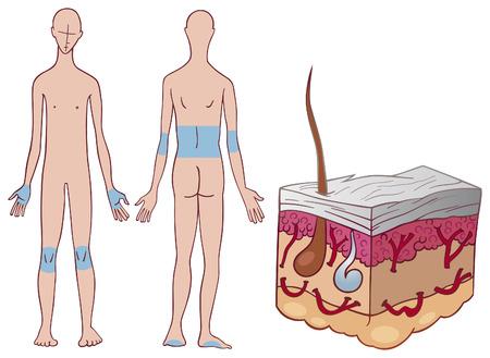 rash: enfermedad de la piel la psoriasis Vectores