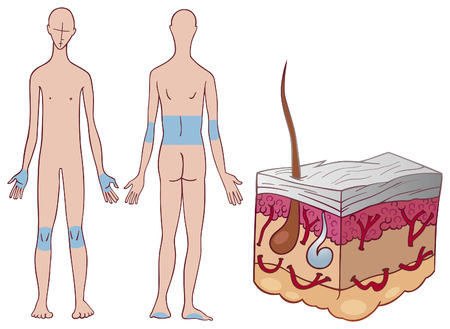 skin psoriasis disease