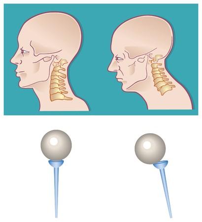 hump: colonna vertebrale collo sezione trasversale