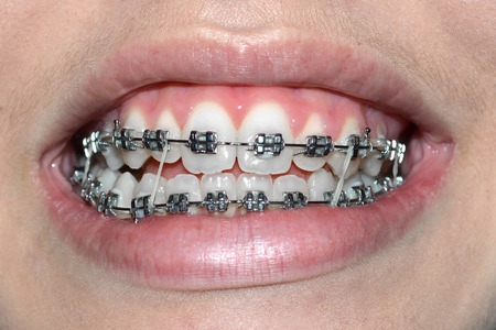 Dental braces with orthodontic elastic rubber bands