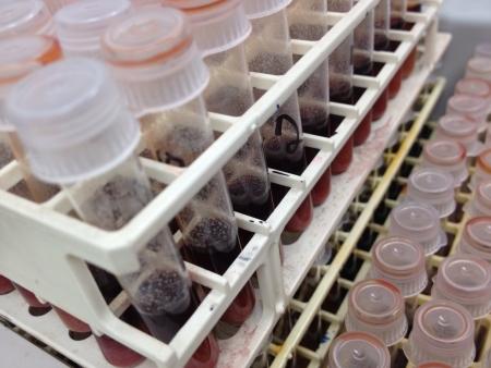 Steekproef overgebleven van een test run op een biomedische engineering bedrijf