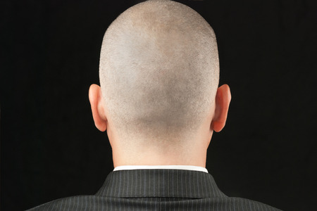 bald head: Close-up of a bald suited man, shot from behind  Stock Photo