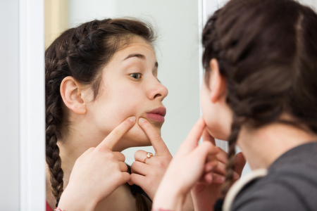 Female teenager squeezing acne spots alone at home