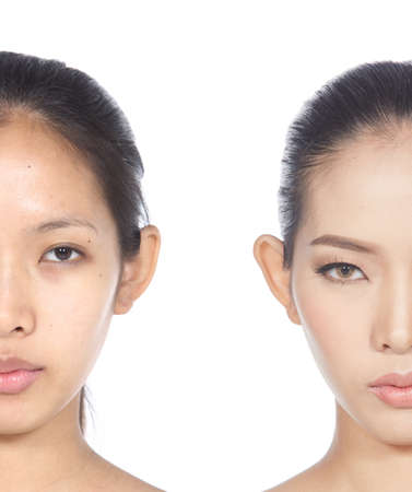 moles: Asian Woman before and After make up and hair do style. no retouch, fresh face with acne, skin moles, fresh face with acne, skin moles, wart then good base and foundation cosmetic Stock Photo