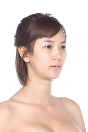 moles: Asian Woman before make up. no retouch, fresh face with acne, skin moles, wart then good base and foundation cosmetic
