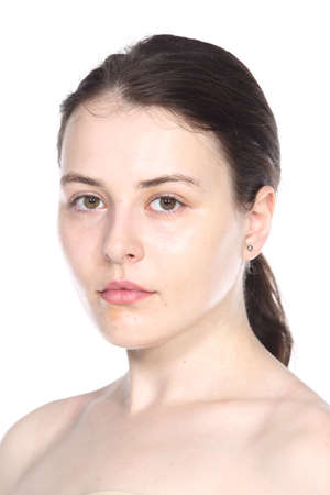 moles: Caucasian Woman before make up hair style. no retouch, fresh face with acne, skin moles, wart then good base and foundation cosmetic Stock Photo