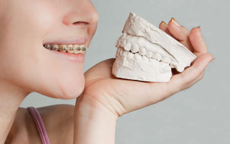 Smile with bracket & plaster jaw model photo