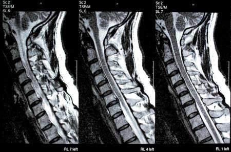 cervicales: Médico de imagen de resonancia magnética de resonancia magnética de columna cervical con hernia de disco y compresión de la médula espinal