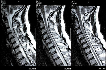 Medical MRI magnetic resonance image of cervical spine with disc herniation and spinal cord compression Stock Photo - 12785774