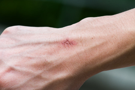 small wound on hand - almost healed