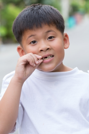 Asian boy shows a broken tooth