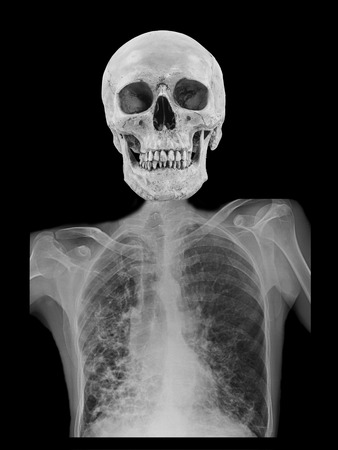 horror skull with Human skeleton from x-ray film photo
