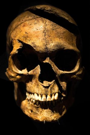 jawbone: Human skull, boken forehead, cleaved by an axe.