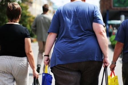 obesidad: Obesidad Foto de archivo