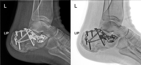 Broken heel Xray fixed with screws and plate, foot pain at doctor office