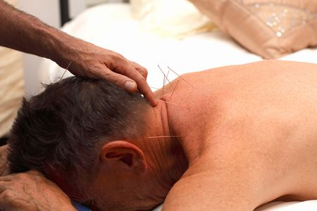 Actual acupuncture being done on male adult patient Stock Photo - 3841786