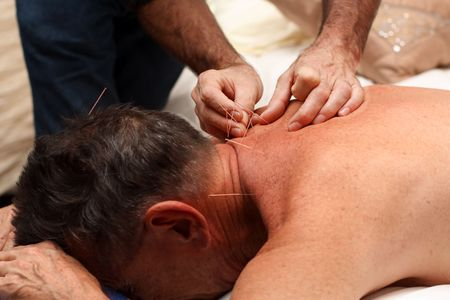 Acupuncture being performed on adult male Stock Photo - 3841785