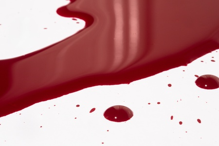 Blood puddle photo