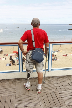 prosthetic: person with artificial leg Editorial