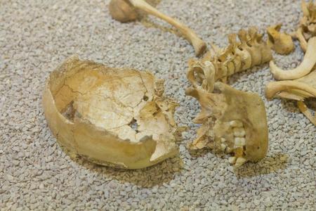 ser humano: viejo esqueleto de un ser humano