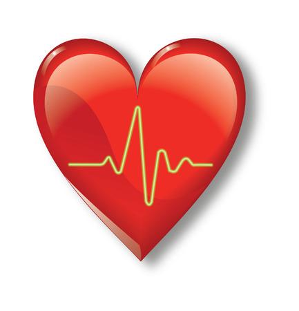tachycardia: heartbeat